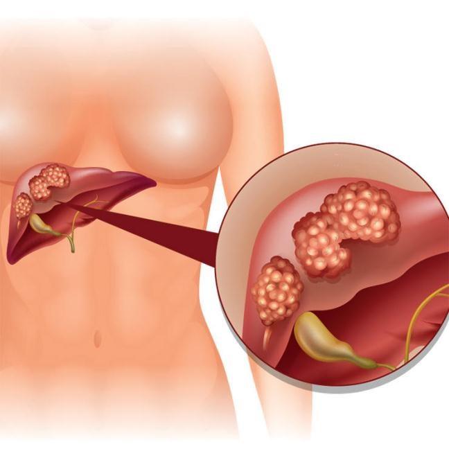 ung thư- 2 ionia.com.vn